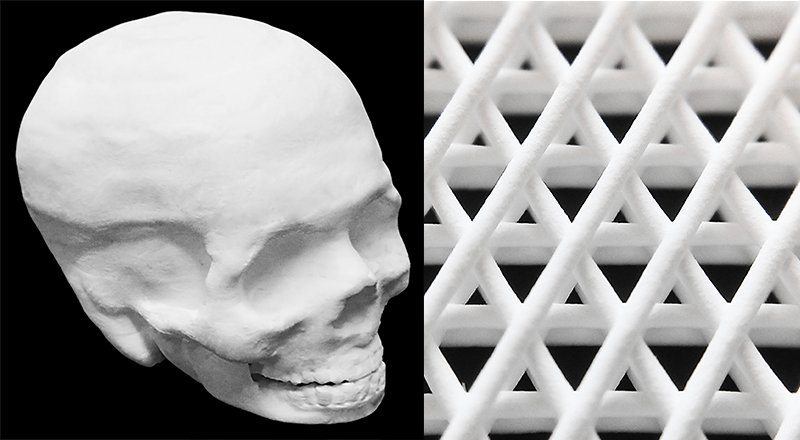 Left: A 3-D printed hyper-elastic bone of the human skull. The interior of the skull is hollow. Right: Close-up photograph of a small region of the first several layers of a 3-D printed hyper-elastic bone sheet. Each fiber is approximately 200 micrometers in diameter. (Credit: Adam E. Jakus, PhD).