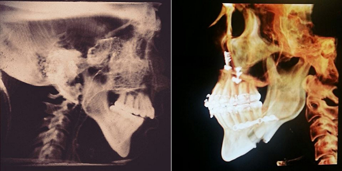 X-rays show Crooks' jaw before and after surgery. (Lana Crooks)