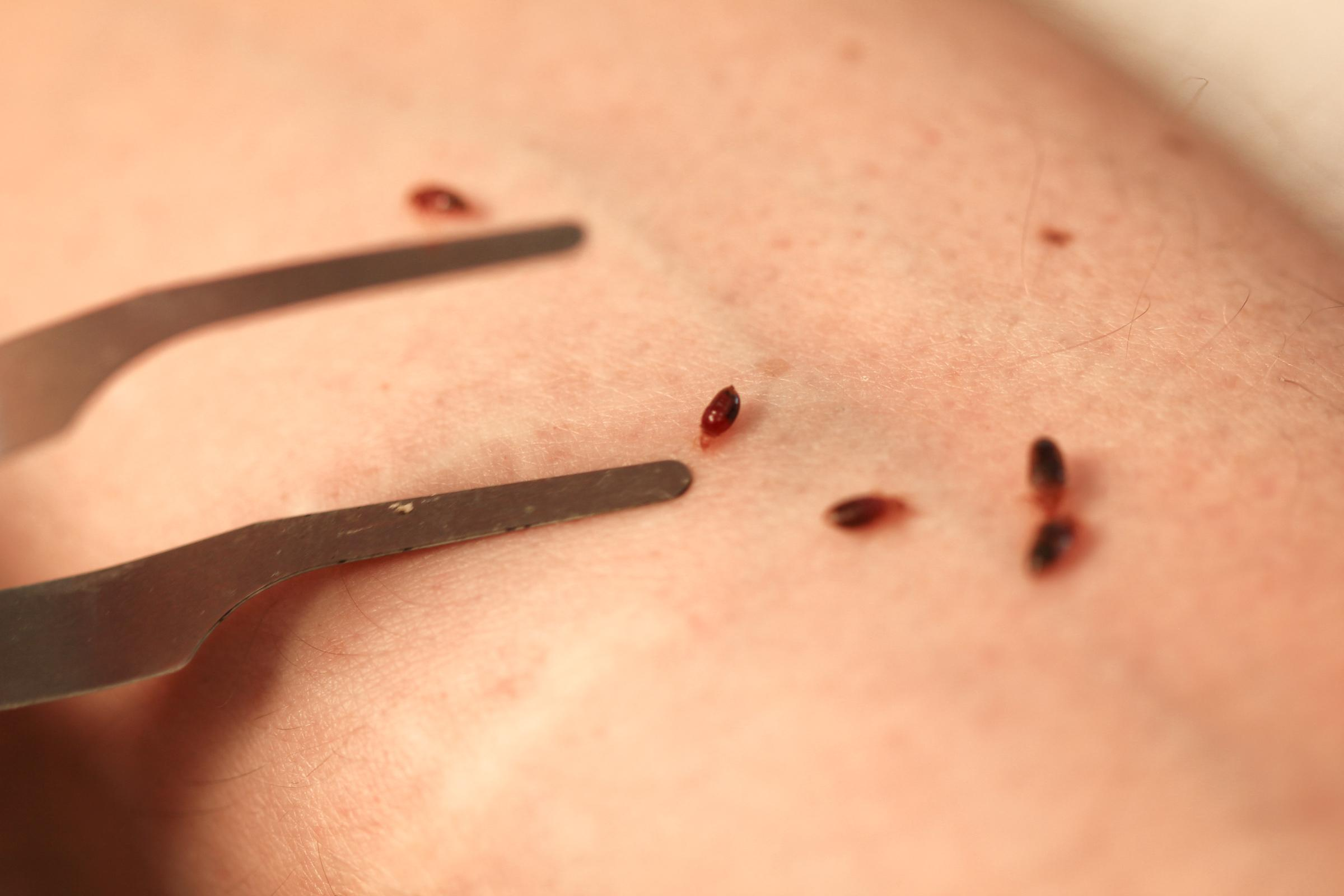 Chicago No 1 City For Bedbugs 4 Years In A Row Chicago News Wttw