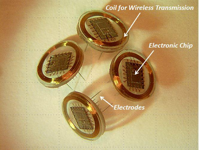Wireless floating microelectrode arrays (WFMAs) will be implanted in the visual cortex of the brain, where they will receive and transmit visual information to the brain (Courtesy of Philip Troyk and Vernon L. Towle)