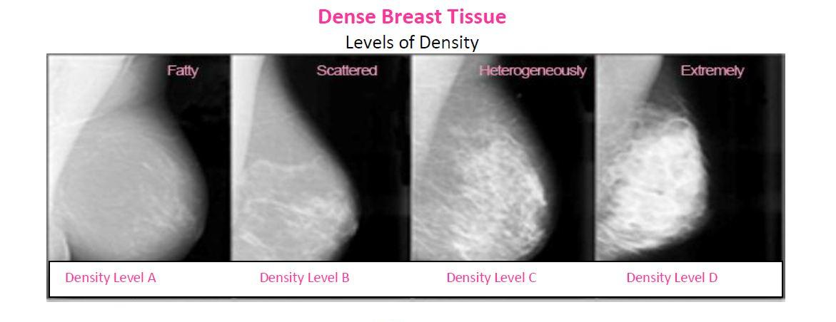 Breast density is classified by radiologists into four categories, ranging from all fatty tissue to extremely dense with very little fat, according to the American Cancer Society. (Courtesy of Are You Dense, Inc.)