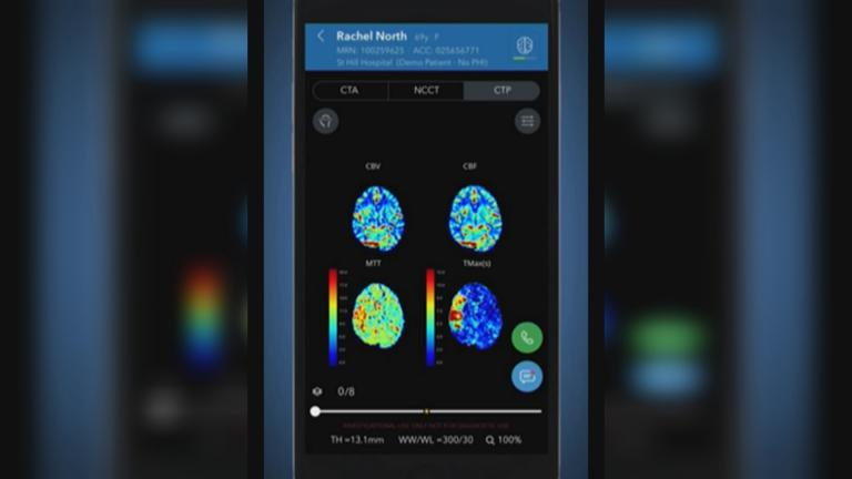 The AI-powered Viz.ai software analyzes brain scans by using an algorithm and deep learning. (Courtesy: Viz.ai, Inc.)