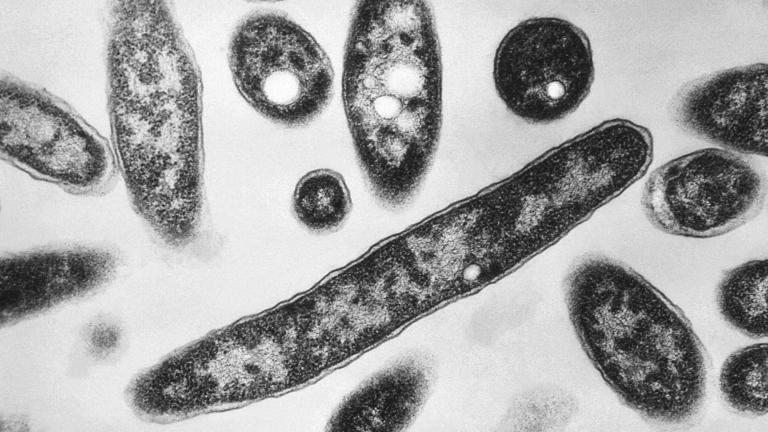 This 1978 electron microscope image made available by the Centers for Disease Control and Prevention shows Legionella pneumophila bacteria, which are responsible for causing the pneumonic disease Legionnaires' disease. (Francis Chandler / CDC via AP)