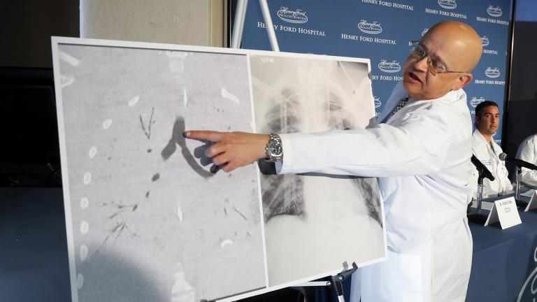 In this Tuesday, Nov. 12, 2019 file photo, Dr. Hassan Nemeh, surgical director of Thoracic Organ Transplant, shows areas of a patient's lungs during a news conference at Henry Ford Hospital in Detroit. (AP Photo / Paul Sancya)