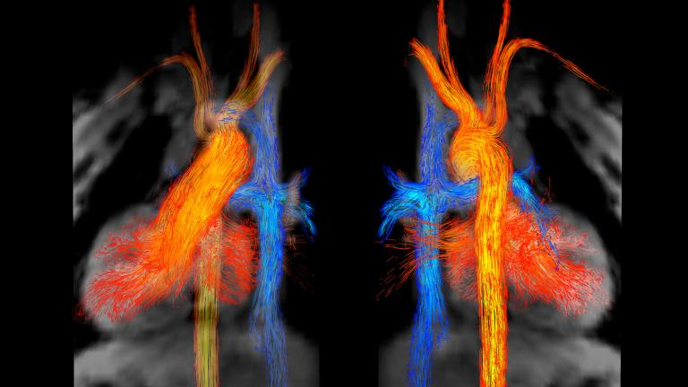 """Kelly Jarvis' """"Blood Flow in Fontan Circulation"""" won first place. Jarvis is with the departments of radiology and biomedical engineering at Northwestern University."""