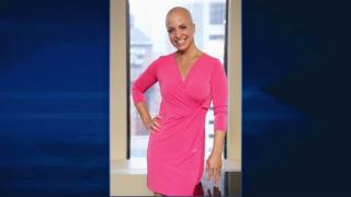 Laura Berman Goes Bald