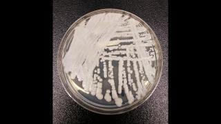 The Candida auris fungus is potentially deadly and can cause a number of infections, some of which are drug-resistant. (Centers for Disease Control and Prevention)