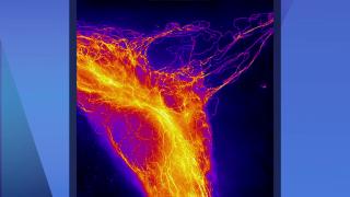 Northwestern University Contest Showcases Beauty of Science