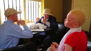 Dangers Facing Albinos Exposed in New Film