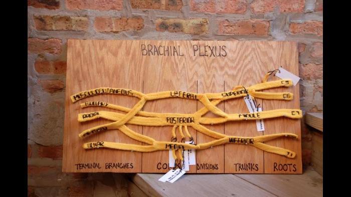Knitted brachial plexus (Courtesy of Daniel Lam)