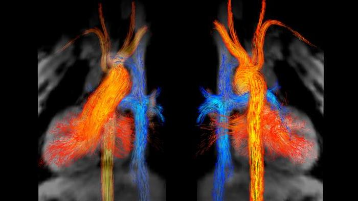 "Kelly Jarvis' ""Blood Flow in Fontan Circulation"" won first place."